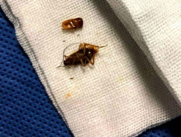 Médico encontra 'família' de baratas vivendo em ouvido de jovem de 24 anos