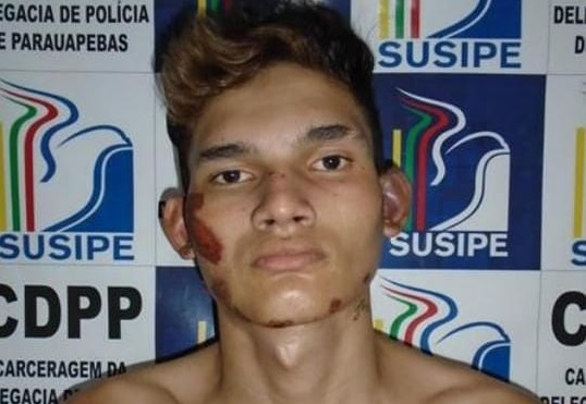 Em Parauapebas, bandidos falham em tentativa de assassinato a ex-presidiário